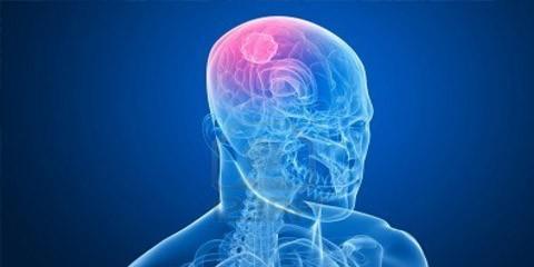 Pruebas que permites diagnosticar un tumor cerebral