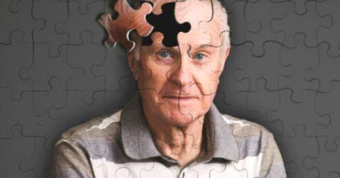 El diagnóstico de alzheimer a través de la Resonancia Magentica