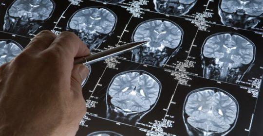 La inteligencia de las personas, examinada a través de una resonancia magnética cerebral
