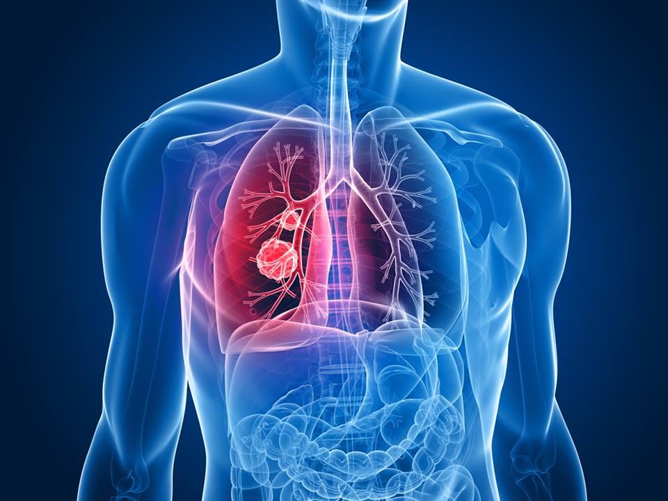 La detección precoz del cancer de pulmón aumenta la supervivencia al 80%