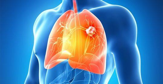 El TAC puede reducir en un 20% la muerte por cáncer de pulmón.