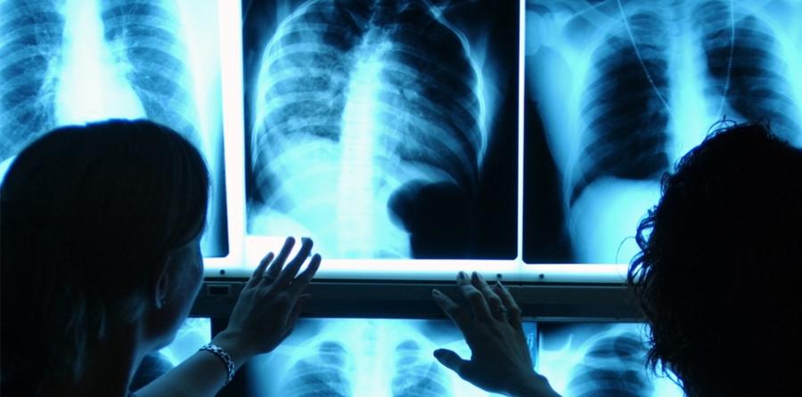 La radiología es la madre de muchos diagnósticos