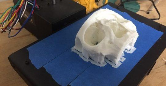 Impresiones 3D para planificar las intervenciones quirúrgicas