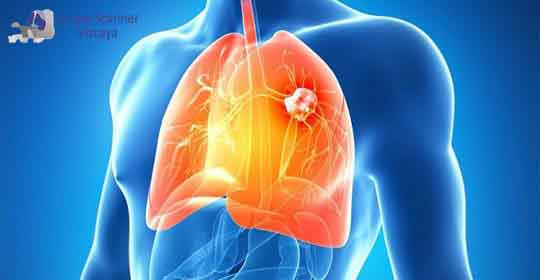 TAC de pulmon