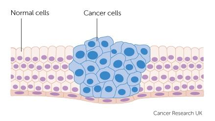 Ignorancia frente a las causas del cancer