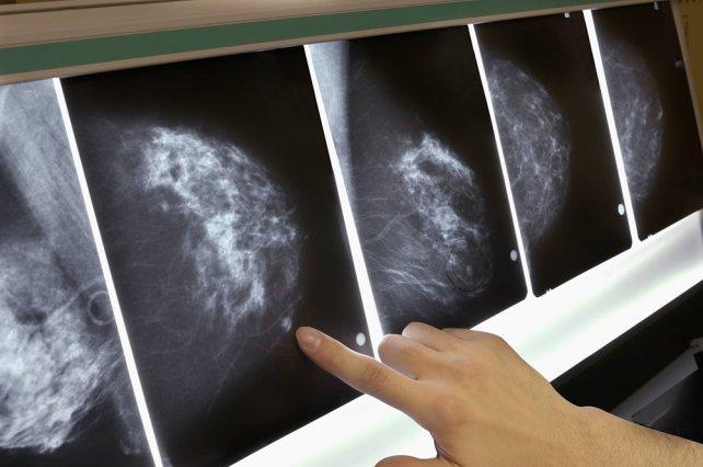 Un autotrasplante eliminó el cáncer en una paciente con metástasis
