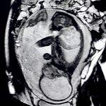 Imagenes RM fetal