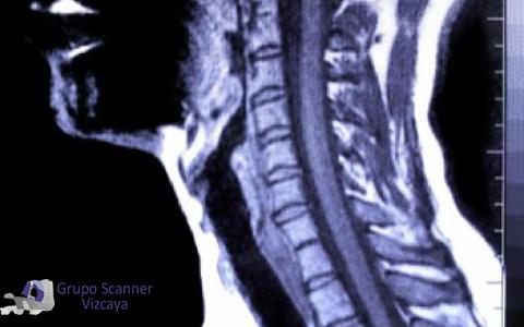 Resonancia Magnetica Cervical
