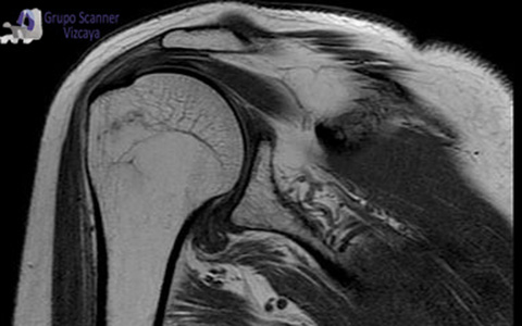 Resonancia Magnetica de hombro