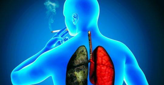Nuevas estrategias contra el cáncer de pulmón