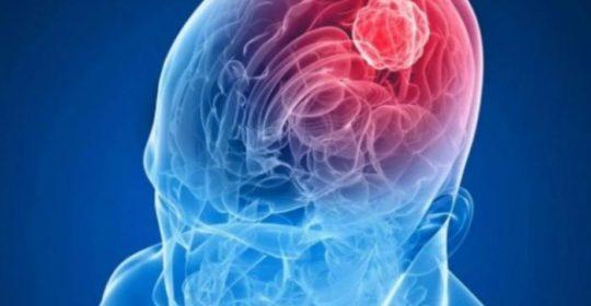 Vacunas de inmunoterapia en el cáncer cerebral