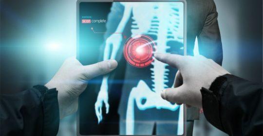 La Inteligencia Artificial en la Radiología