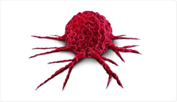 Inventan un análisis de sangre que detecta tumores con antelación