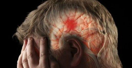 ¿Sabes qué es un derrame cerebral?