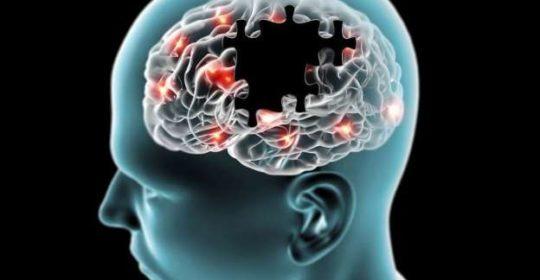 Resonancia magnética en tumores cerebrales