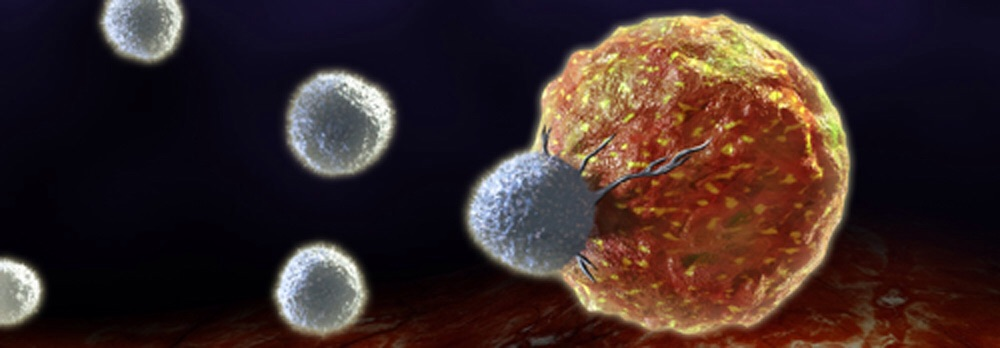 Quimio e inmunoterapia combinadas contra el cáncer de pulmón