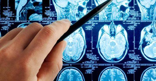 Resonancia magnética para identificar el VIH