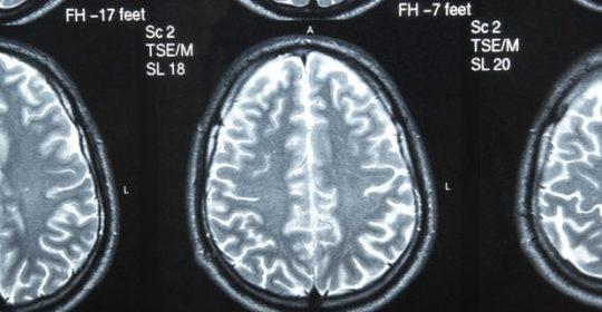 Resonancia Magnética para identificar a el VIH