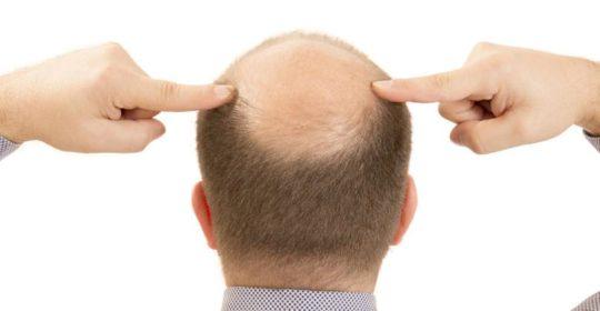 Cuadros más graves de la Covid-19en enfermos con alopecia androgénica.