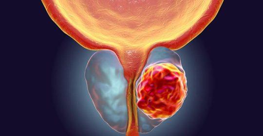 Cáncer de próstata : vigilar una posible recaída