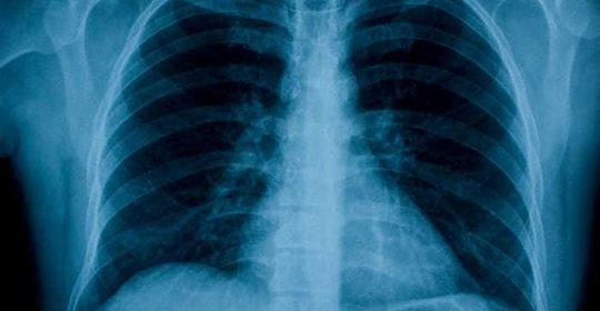 La SERAM aclara que ni las radiografías ni las TC son técnicas válidas para el diagnóstico de coronavirus