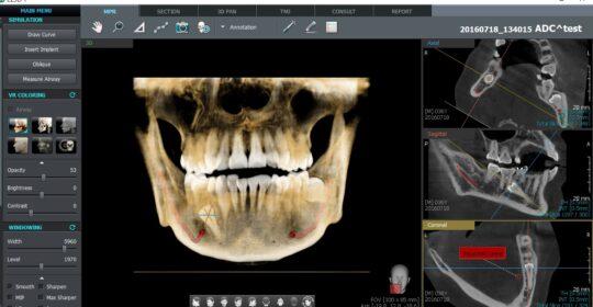 La importancia del TAC dental en odontología