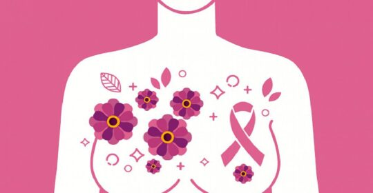 El PET-TAC mejora el pronóstico del cáncer de mama inflamatorio.